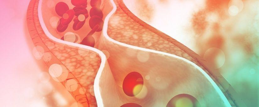efeitos do colesterol alto