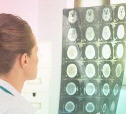 sequelas neurológicas pós-covid-19